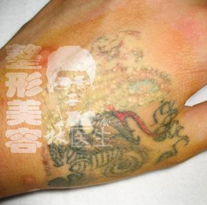 洗纹身原理详解
